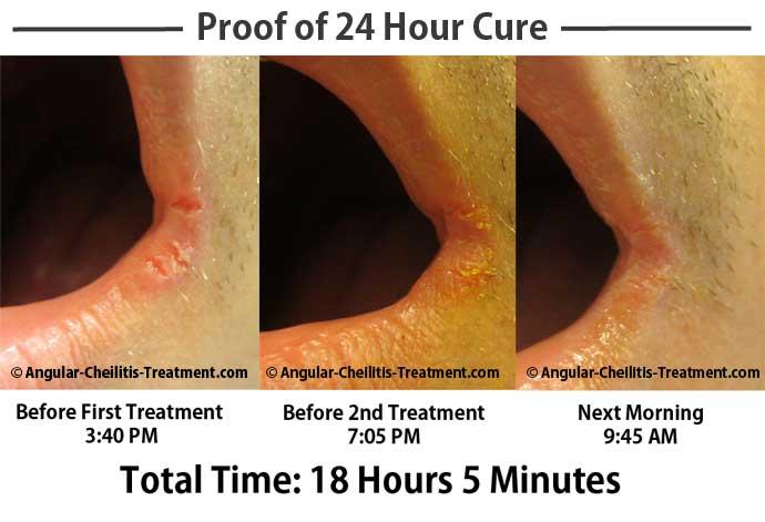 Treat Angular Cheilitis Naturally